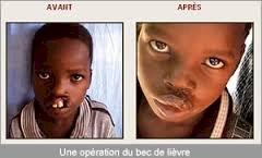 Ils ont retrouvé leurs lèvres grâce à la Fondation Gerico